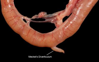 Дивертикул Меккеля у дітей: МКБ-10, локалізація, фото, симптоми, ускладнення, діагностика, лікування