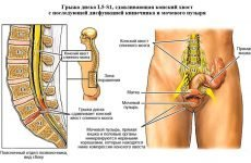 Дорзальна грижа міжхребцевого диску поперекового (l5-s1), шийного (C5-C6), грудного відділів, лікування