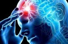 Ознаки при повторному геморагічному і ішемічному інсульті. Як уникнути повторного інсульту