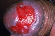 Ерозивний баланопостит у чоловіків: причини, симптоми, лікування