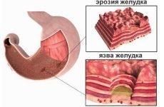 Ерозія шлунка: що це таке, симптоми, лікування