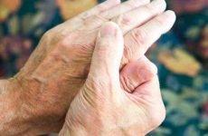 Фактори ризику ревматоїдного артриту