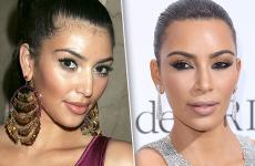 Фемінізація (корекція) лінії росту волосся: ціна, фото до і після, відгуки, протипоказання