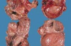 Феохромоцитома наднирника: симптоми і причини, діагностика, лікування, прогноз життя