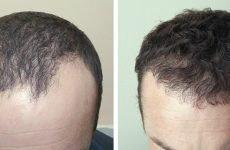 Фолікулярна пересадка волосся (методом FUE): ціна, фото до і після, відгуки, реабілітація