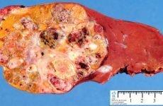 Гепатобластома печінки у дітей: симптоми, причини, прогноз, діагностика і лікування