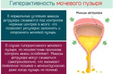 Гіперактивний сечовий міхур у дітей, чоловіків і жінок: причини, симптоми, лікування