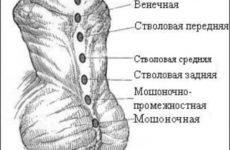 Головчаста, стовбурова, вінцева гіпоспадія у хлопчиків: причини, симптоми, діагностика, операція