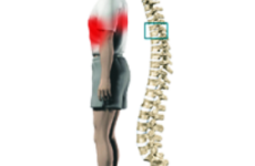 Грижа грудного відділу хребта: симптоми, лікування, ознаки, чим небезпечна, фото