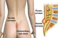 Грижа крижового відділу хребта (куприка): симптоми, лікування, фото, вправи
