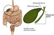 Густа жовч в жовчному міхурі: причини, симптоми, лікування препаратами і народними засобами