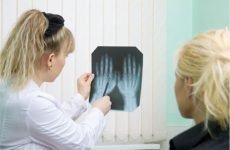 Як діагностувати ревматоїдний артрит