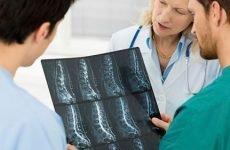 Як лікувати анкілозуючий спондилоартрит…