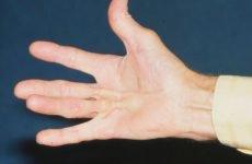 Як лікувати контрактуру Дюпюїтрена на руках