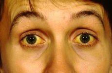 Як проявляється гепатит С: перші ознаки та симптоми хвороби
