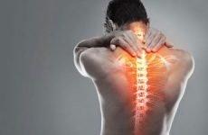 Як розслабити м'язи шиї, плечей і голови при остеохондрозі: масаж, гімнастика, препарати
