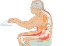 Як прибрати горб на спині у дітей: фото, причини, що робити, вправи