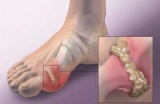 Як виглядає подагра на ногах: фото, як лікувати набряки і опухлі шишки на пальцях