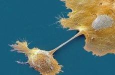 Як виявити рак шийки матки: аналізи, онкомаркери, УЗД скринінг, ознаки і симптоми