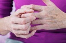 Як жити з псоріатичним артритом