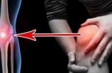 Хондрокальциноз (псевдоподагра) колінного суглоба або ребер: симптоми, лікування