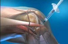 Хондропротектори для хребта, колінного або тазостегнового суглоба: при артрозі, коксартроз, остеохондроз