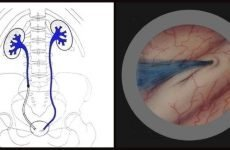 Хромоцистоскопія: що це, показання, підготовка, техніка виконання, розшифровка результатів