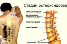 Хронічний шийний, грудний, поперековий остеохондроз хребта: симптоми, лікування