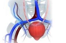 Кишкова і ортотопічна пластику сечового міхура: показання та протипоказання, техніка виконання, реабілітація