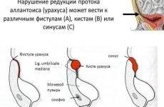 Кіста урахуса у жінок і у чоловіків: причини, симптоми, діагностика, лікування