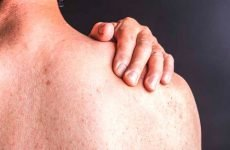 Клінічні форми псоріатичного артриту