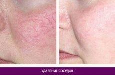 Лазерне видалення судин на обличчі: відгуки, фото до і після, ціна, показання