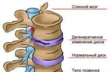 Лікувальна гімнастика Шишонина при шийному, грудному або поперековому остеохондрозі: відео