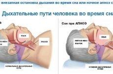 Лікування апное в домашніх умовах – ефективні методи