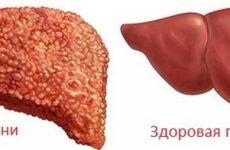 Лікування цирозу печінки в домашніх умовах