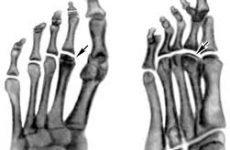 Лікування остеохондропатії кісток: великогомілкової, таранної, стегнової, човноподібної, плеснової