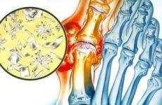 Лікування подагри на ногах народними засобами в домашніх умовах: трави, методи