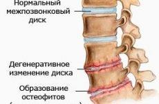 Лікування шуму та дзвону у вухах при шийному остеохондрозі: як позбутися відгуки