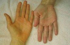 Лікується гепатит В: кращі способи повного лікування захворювання