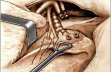 Лобектомія легенів, головного мозку: хід операції і в післяопераційний період