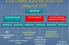Мегауретер у дітей і дорослих: код за МКХ-10, форми, симптоми, діагностика, лікування