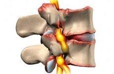 Грижа міжхребцевого диска попереково-крижового відділу хребта: симптоми, лікування, вправи, операція