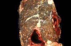 Мезотеліома плеври, очеревини: симптоми, причини, фото, діагностика і лікування