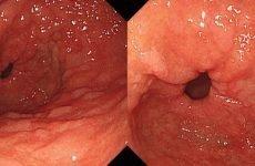 Чи можна жити без шлунка: наслідки операції по його видаленню, термін життя