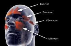 МРТ і КТ придаткових пазух носа: показання, ціна, фото, як роблять