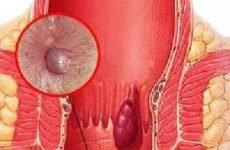 Зовнішній геморой: симптоми, лікування, найефективніші препарати, свічки
