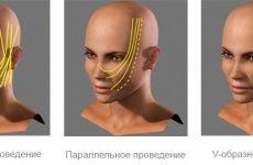 Нитки для підтяжки шкіри Спрінг трейд: склад, ціна, показання, протипоказання, побічні ефекти, відгуки