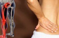 Ниючий біль в попереку, віддає в праву або ліву ногу: причини, лікування, що робити при сильному синдромі