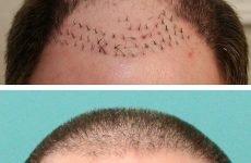 Операція по пересадці волосся стрип-методом: ціна, фото до і після, відгуки, реабілітація