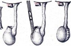 Операція Росса при водянці яєчка у дітей: показання, підготовка, техніка виконання